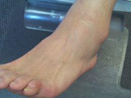Acute ankle sprain